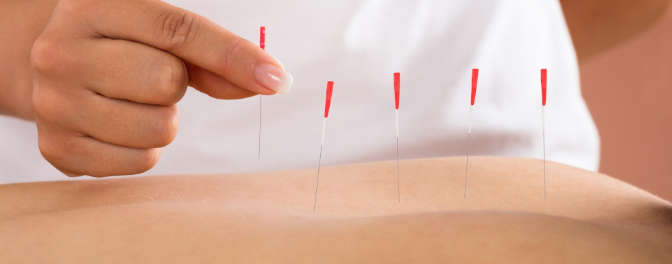acupuncture cary nc