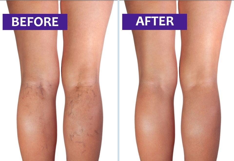before after vein therapy 2
