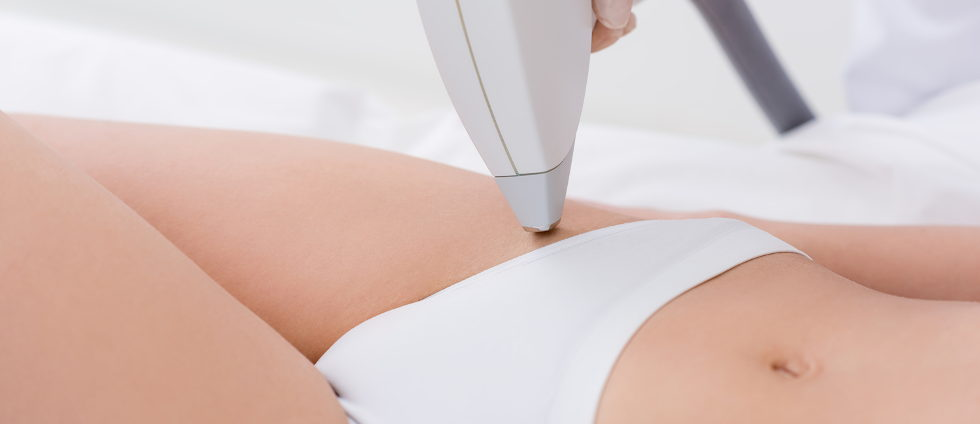 cary laser hair removal mobi