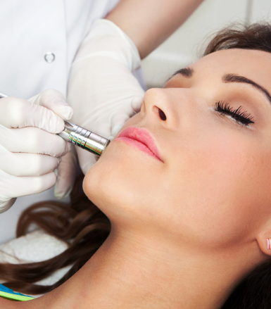laser hair removal cary