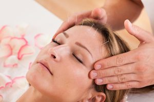 Nirvelli Day Spa acupuncture